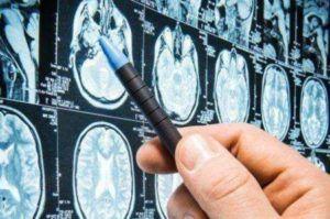 Operacje neurochirurgiczne w Polsce refundowane przez NHS?