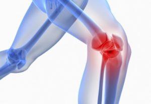 intervenția chirurgicală totală de înlocuire a genunchiului