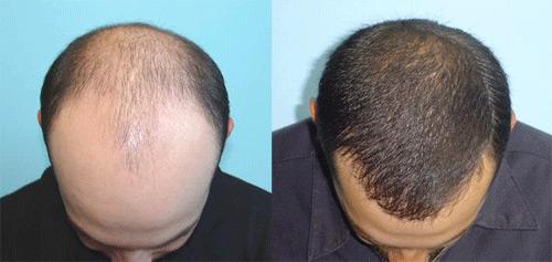 matu transplantācija