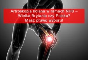 artroskopii kolana w prywatnej klinice w Polsce
