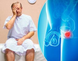 Prostate cancer treatment abroad without surgery and NHS waiting list
