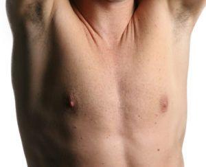 NHS Atmaksāta Kvalitatīva Vīriešu Krūšu Samazināšanas Operācija Privātajā Klīnikā Latvijā