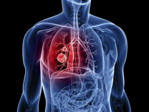 Lung cancer treatment in private clinic abroad