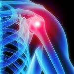 NHS Refunded Shoulder Replacement Abroad - No NHS Waiting Times