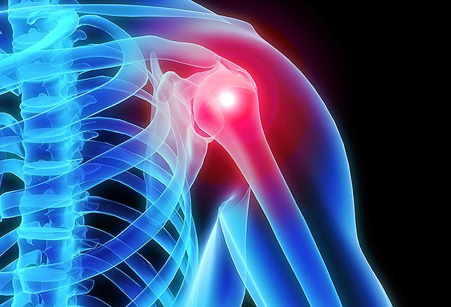 Shoulder Arthroscopy Abroad Avoiding NHS Surgery Waiting Times