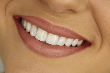 Affordable dental treatment in private clinic abroad