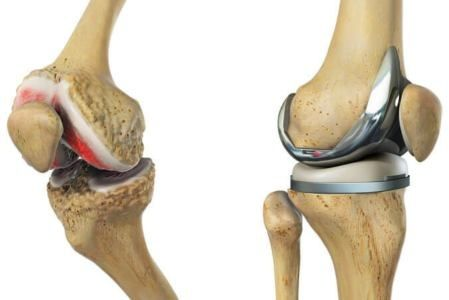 NHS Refunded Knee Replacement Abroad Avoiding NHS Waiting Times